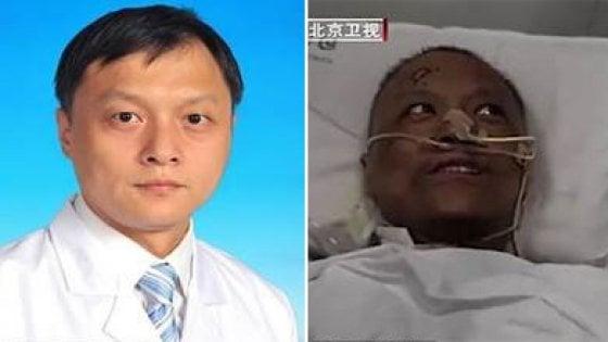 Coronavirus : I medici cinesi si risvegliano con la pelle nera - Video